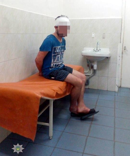 Сусіди побилися: черкаські патрульні затримали чоловіка, який скоїв напад на 17-річного парубка (ФОТО), фото-2