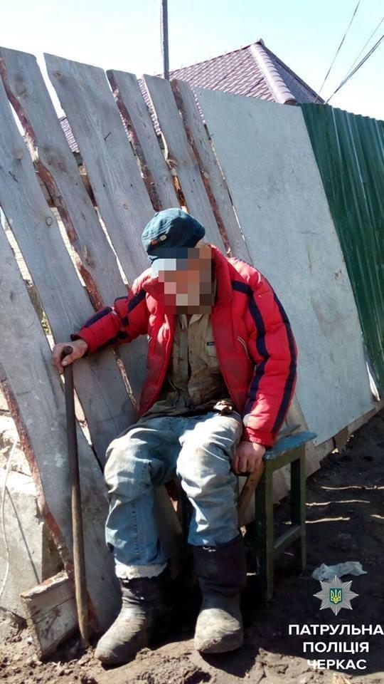 Пенсіонер, у якого розійшовся післяопераційний шов, добу провів на вулиці, фото-1