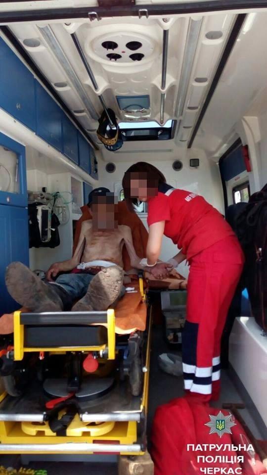Пенсіонер, у якого розійшовся післяопераційний шов, добу провів на вулиці, фото-2